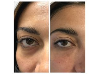 Eliminare occhiaie - Dr. Gioia Mario