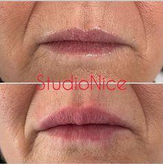 Filler labbra - Dr. Gioia Mario