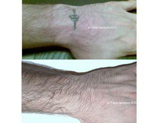 Rimozione tatuaggi-751746
