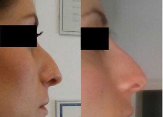 naso prima e dopo