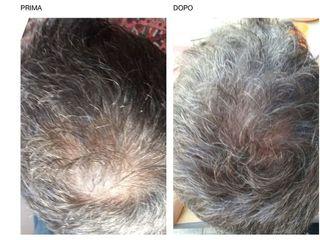 Trattamento capelli prima e dopo