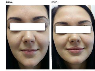 Assimetria labbra prima e dopo