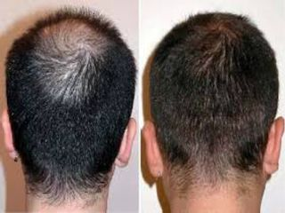 Alopecia prima e dopo