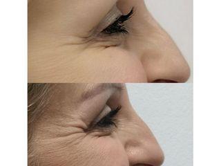 Botox perioculare prima e dopo