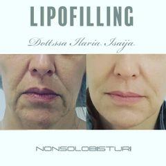 Lipofilling - NONSOLOBISTURI