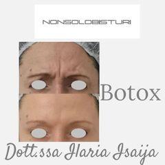 Botulino - NONSOLOBISTURI