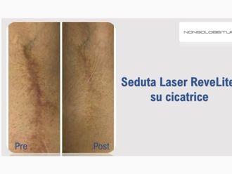Cicatrici - 789639