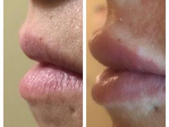 Filler labbra-791982