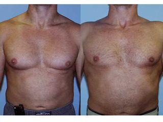 Ginecomastia prima e dopo