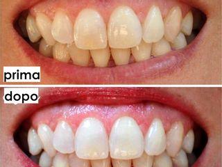 Sbiancamento dentale prima dopo