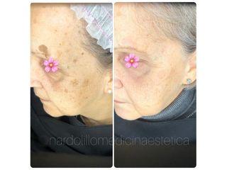 Macchie della pelle - Dott.ssa Paola Nardolillo