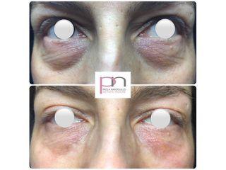Eliminare occhiaie - Dott.ssa Paola Nardolillo