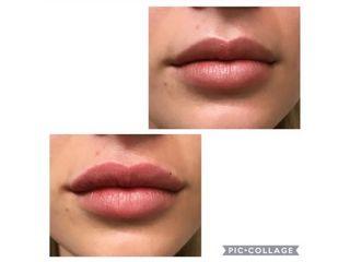 Filler labbra - Dott.Di Molfetta Pasquale