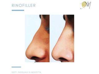 Rinofiller - Dott.Di Molfetta Pasquale