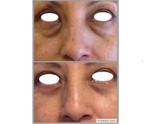 Eliminare occhiaie-766557