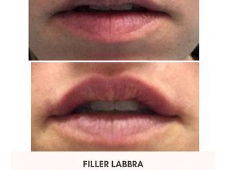 Filler labbra-774440