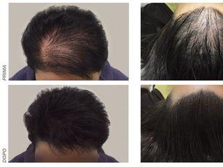 alopecia androgenetica prima e dopo