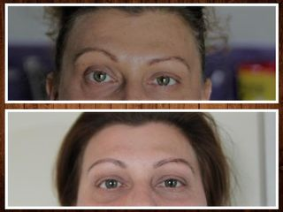 Pre e post Botox