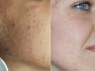 Pre e Post Peeling