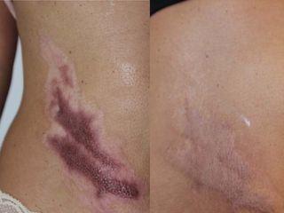 Cicatrice post ustione prima e dopo