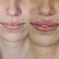Riarmonizzazione labiale prima e dopo - Studio Medico Ametìs Dott.ssa Elena Vescovi