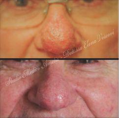 Rinofima trattato con laser Co2 - Dott.ssa Elena Vescovi