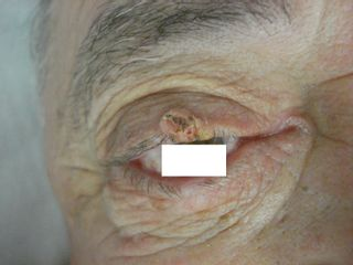 fibroma palpebrale