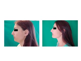 Laserlipolisi prima e dopo