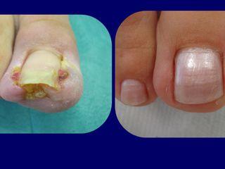 Onicectomia prima e dopo
