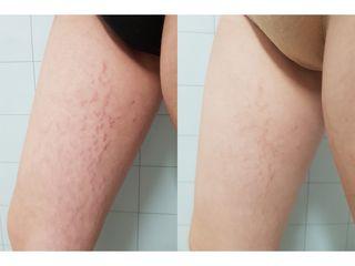 Biodermogenesi prima e dopo