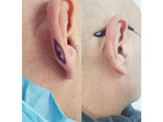 Asportazione epitelioma prima e dopo