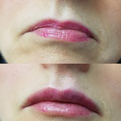 Filler labbra - Dott. Giovanni Profeta