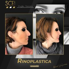 Rinoplastica - SCEB Salute Chirurgia Estetica Benessere - Dott. Manuel De Giovanni