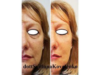 Peeling e contorno occhi prima e dopo