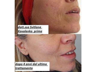 Cicatrici da acne prima e dopo