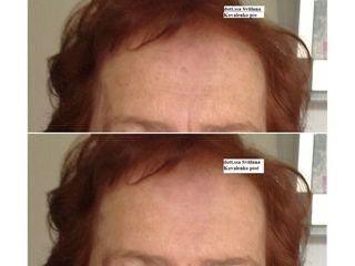 fronte prima e dopo