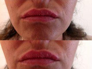 Biorivitalizzazione labbra prima e dopo