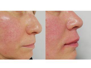 Filler labbra - Dott.ssa Mariafranca Maietta