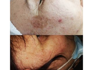 Macchie della pelle - Dott.ssa Mariafranca Maietta