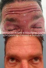 Dermatite solare e riduzione rughe con peeling chimico e botulino