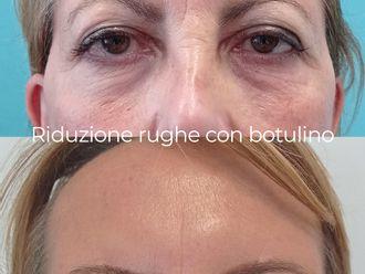 Botulino-787603
