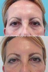 Botulino - Dott.ssa Mariafranca Maietta