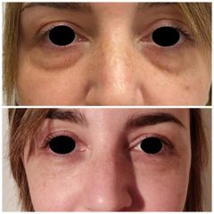 Eliminare occhiaie - Dott.ssa Mariafranca Maietta