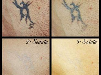 Rimozione tatuaggi-771722