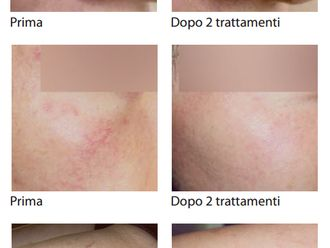 Laserterapia-748994