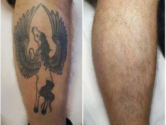 Rimozione tatuaggi-767078