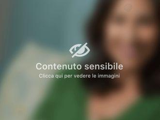 Sostituzione protesi mammarie-312795
