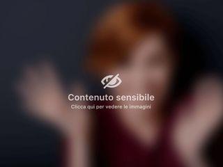Mastoplastica additiva - Dott. Franco Maniglia Poliambulatorio Specialistico Cittadella