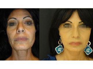 Trattamento cicatrici da acne