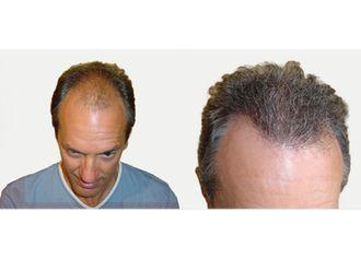 Trapianto capelli-751132